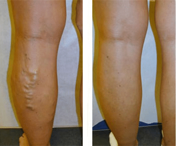 Varicose Veins Before/After